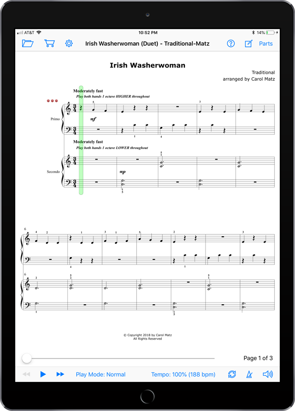 Irish Washerwoman (Duet) – Traditional-Matz